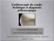 L'arthroscopie du coude: Technique et diagnostic ... - ClubOrtho.fr
