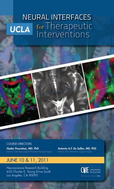 Neural Interfaces for Therapeutic Interventions - UCLA Neurosurgery