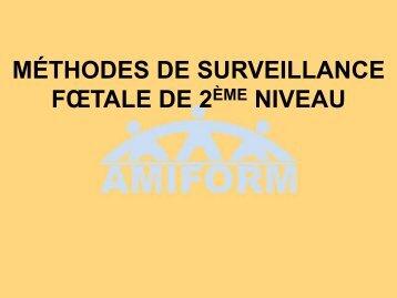 Méthodes de surveillance fœtale de 2ème niveau