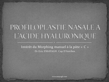 PROFILOPLASTIE NASALE A L'ACIDE HYALURONIQUE