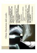 Tema 3 Fisioterapia en las fracturas y luxaciones del codo - Page 4