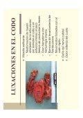 Tema 3 Fisioterapia en las fracturas y luxaciones del codo - Page 7