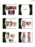 • Fossas nasais • Seios paranasais • Faringe • Cavidade bucal ... - Page 7