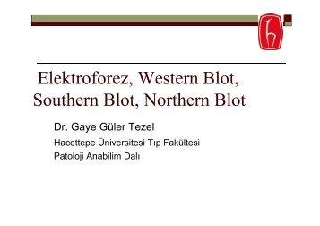 Elektroforez, Western Blot, Southern Blot, Northern Blot