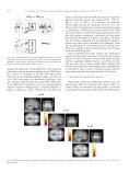Genetically predisposed offspring with schizotypal features: An ultra ... - Page 5