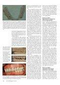 Wie der Biss den Schlaf beeinträchtigen kann - Dr. Brigitte Losert ... - Page 3