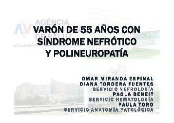 Varón de 55 años con síndrome nefrótico y polineuropatía