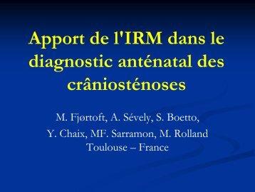 Apport de l'IRM dans le diagnostic anténatal des crâniosténoses