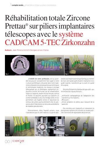 Réhabilitation totale Zircone Prettau® sur piliers ... - Zirkonzahn