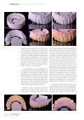 Réhabilitation totale Zircone Prettau® sur piliers ... - Zirkonzahn - Page 3