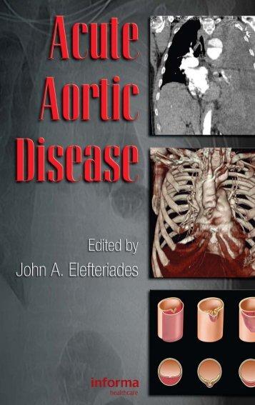 Acute Aortic Disease.. - Index of
