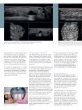 Automated Breast Volume Scanning 3D Ultrasound of the Breast - Page 3