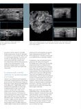 Automated Breast Volume Scanning 3D Ultrasound of the Breast - Page 4