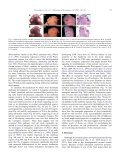 Impaired neural development caused by inducible expression of ... - Page 6