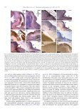Impaired neural development caused by inducible expression of ... - Page 7