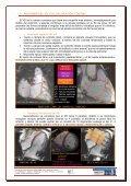 estudio del ventrículo derecho mediante resonancia magnética - Page 3