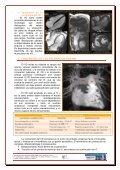 estudio del ventrículo derecho mediante resonancia magnética - Page 6
