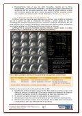 estudio del ventrículo derecho mediante resonancia magnética - Page 7