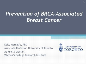 Prevention of BRCA-Associated Breast Cancer