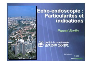 Echo-endoscopie : Particularités et indications