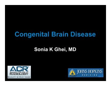 Congenital Brain Disease