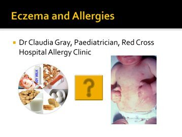 Claudia Gray: Eczema and Allergies Friday 11 February