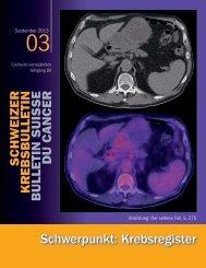 Schwerpunkt: Krebsregister - SAKK – Swiss Group for Clinical ...