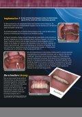 Beschleunigte Rehabilitation des Patienten - BIOMET 3i - Seite 3