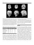 A high-resolution MRI study of linear growth of the human fetal skull ... - Page 5