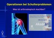 Operationen bei Schulterproblemen - Merian Iselin Virtuell