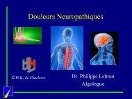 Douleurs Neuropathiques - Chi2