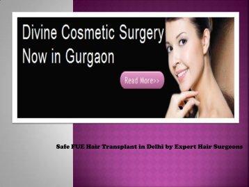 Fue Hair Transplantation Delhi