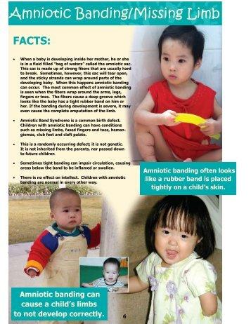 Amniotic Banding/Missing Limb - Faith International Adoptions