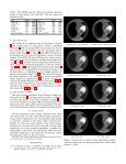Image Artifact Influence on Motion Compensated Tomographic ... - Page 3