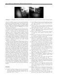 Orientation of endoscopic images: rectification by gravity - Page 7