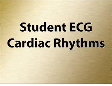 Student ECG Cardiac Rhythms
