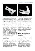 18  Albue og underarm - Gyldendal - Page 3