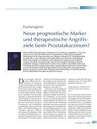 ziele beim Prostatakarzinom? - andrologen.info