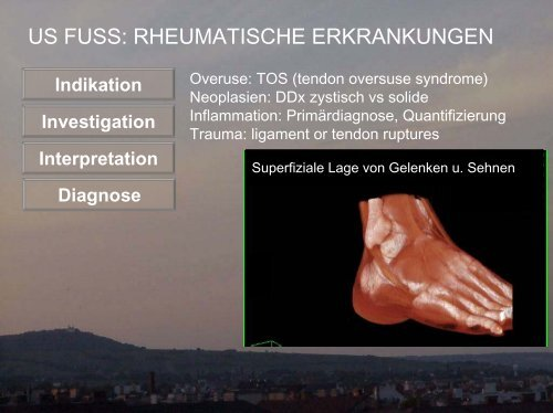 Ultraschall Fuß - Rheumatische Erkrankungen