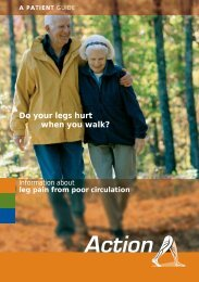 Do your legs hurt when you walk? - Sherif Sultan