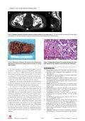 PDF (0K) - World Journal of Gastroenterology - Page 3