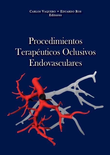 Enfermedad oclusiva aortoiliaca colaterales hipertensión portal