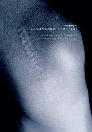 Informationen und Tipps zur Narbenbehandlung - Kantonsspital ...