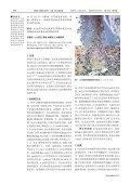 胃癌组织Axin 蛋白的表达与侵袭转移的相关性 - Page 2