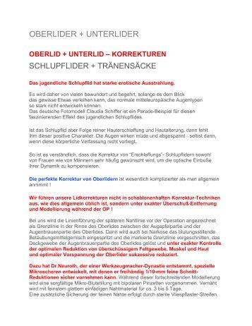 INFO-DOWNLOAD OBERLIDER-UNTERLIDER-AUGENRINGE