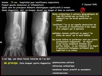 LM CC ostéo-artic métastases osseuses cancer du rein
