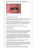 Reacciones Adversas a Medicamentos en Dermatología - Page 5