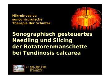 Needling mit Slicing - Homepage Sonographie-Institut Bethanien ...