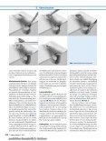 Behandlungsstandards für Pilonidalsinus und ... - Notes Chirurgie - Seite 4