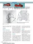Behandlungsstandards für Pilonidalsinus und ... - Notes Chirurgie - Seite 6